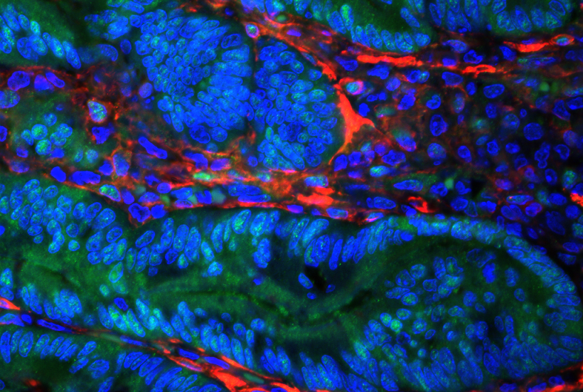 Image of a colon tumor in mice. Cancer-associated fibroblasts  help the tumor grow more aggressively and help block the immune system response against it.