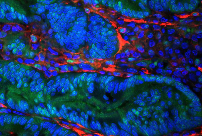 colon tumor in mice