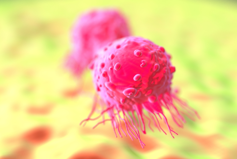 Illustration of breast cancer cells.