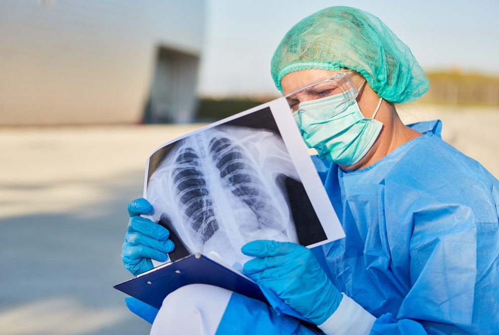 person looking at x-ray image of chest.