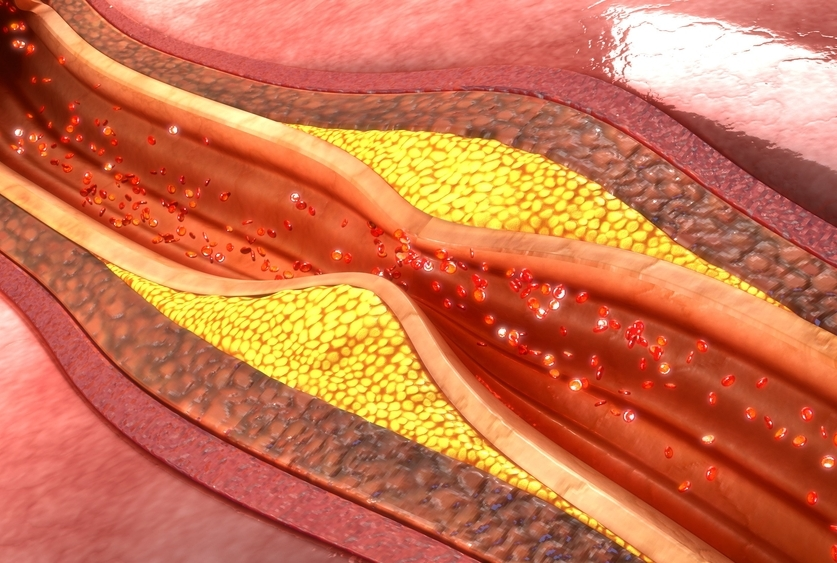3D illustration of coronary artery plaque