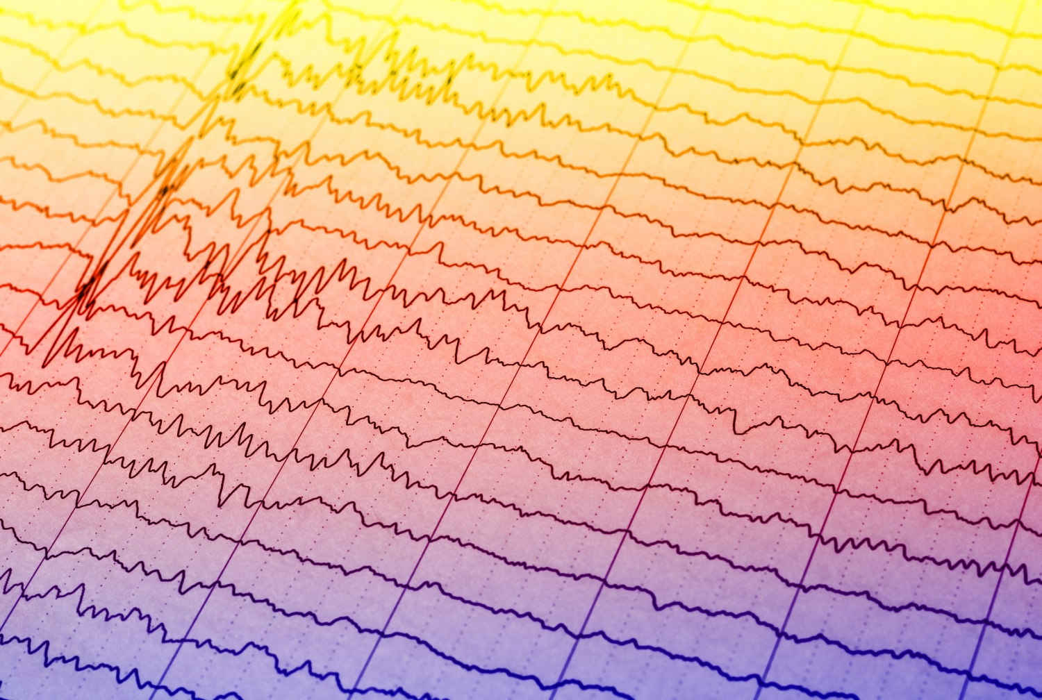 EEG wave in human brain.